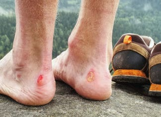 Hiking_Blisters_Prevention_And_Treatment